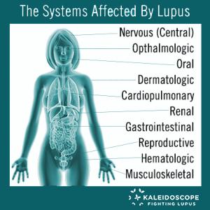 Kaleidoscope What Is Lupus? - Kaleidoscope
