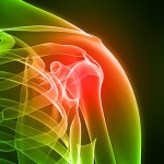 shoulder-pain-400-web-72dpi