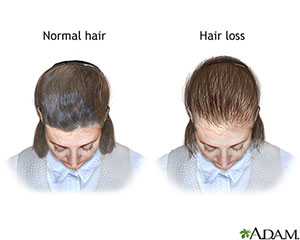 Thinning-Hair-nih-for-web