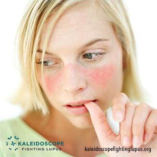 Kaleidoscope Lupus Butterfly Rash Malar Rash Info Pictures